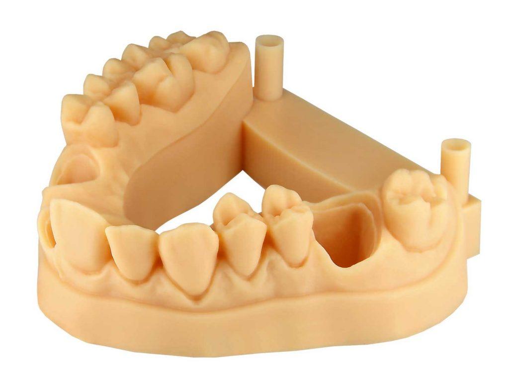 stampante 3d ortodonzia- materiale E-Denstone-Envisiontec