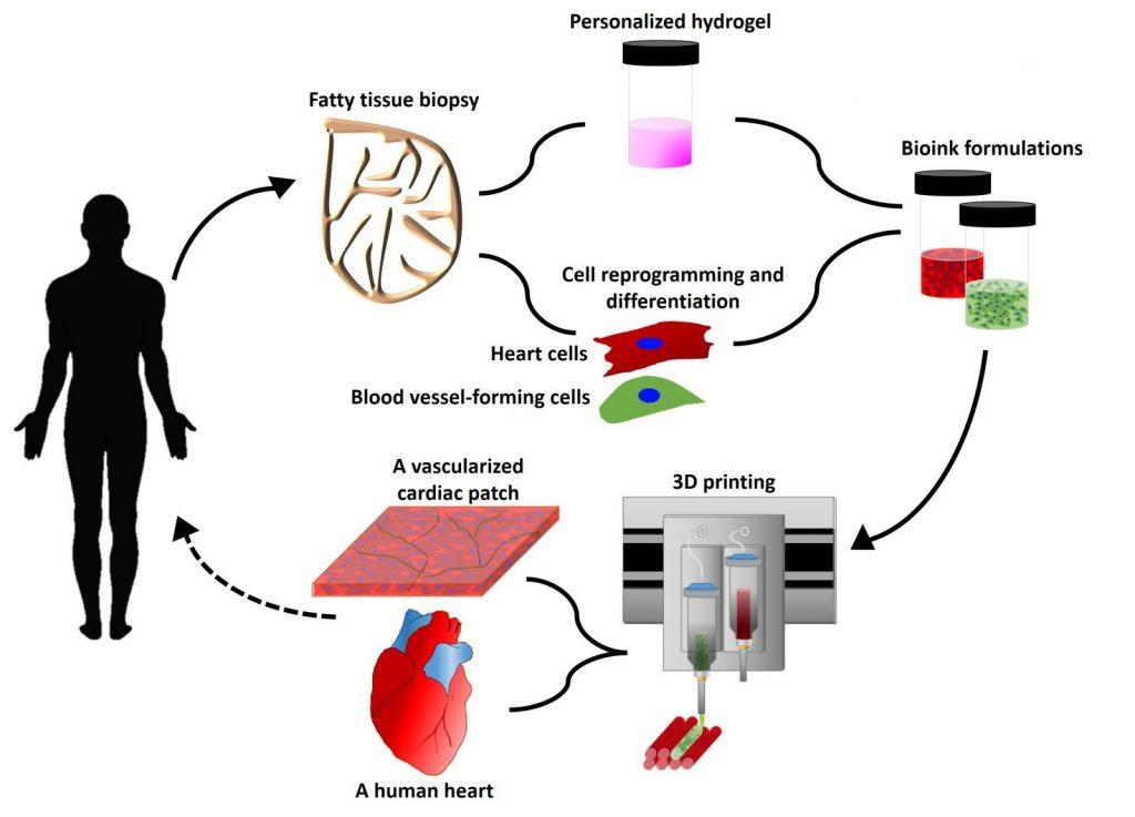 Il primo cuore stampato in 3D derivante da cellule umane