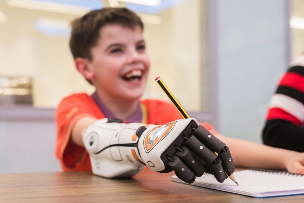 Cameron Millar - stampa 3d protesi - open bionics
