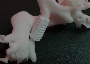 4D Bioprinting Additive Manufacturing broncomalacia - Francesco Puzello